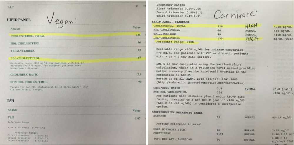 nutrition awareness, cholesterol results on carnivore diet